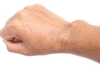 Ganglion Cyst - Physiotherapy Treatment in Toronto