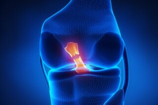ACL injury - chiropractic treatment in toronto
