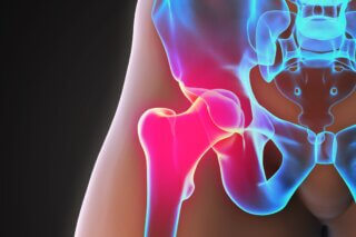 Physiotherapy and Chiropractic for Hip Labral Tears